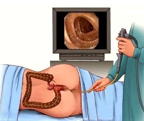 Colonoscopy Procedure